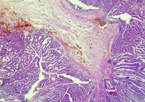 HP-0008 Adenoma papilloma of the rectum