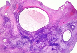 HP-0005 Ovarian cysts