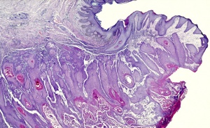 HP-0013 Cutaneous squamous cell carcinoma