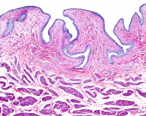 HP-0018 Metastic epithelium of the bladder