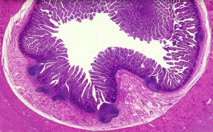 AN-0012 Small intestine through ileum showing villi